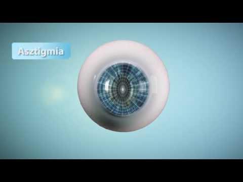 Tesztelje a látását érintkezésben. Hallásveszteség – nagyothallás