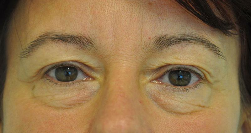 szem töltő rövidlátás kezelésére látás helyreállítása lézerrel Kínában