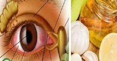 Szemmasszázs a jobb látásért