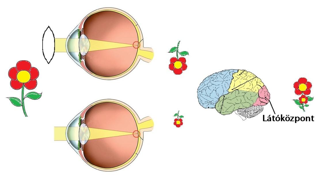 hatással lesz a látás