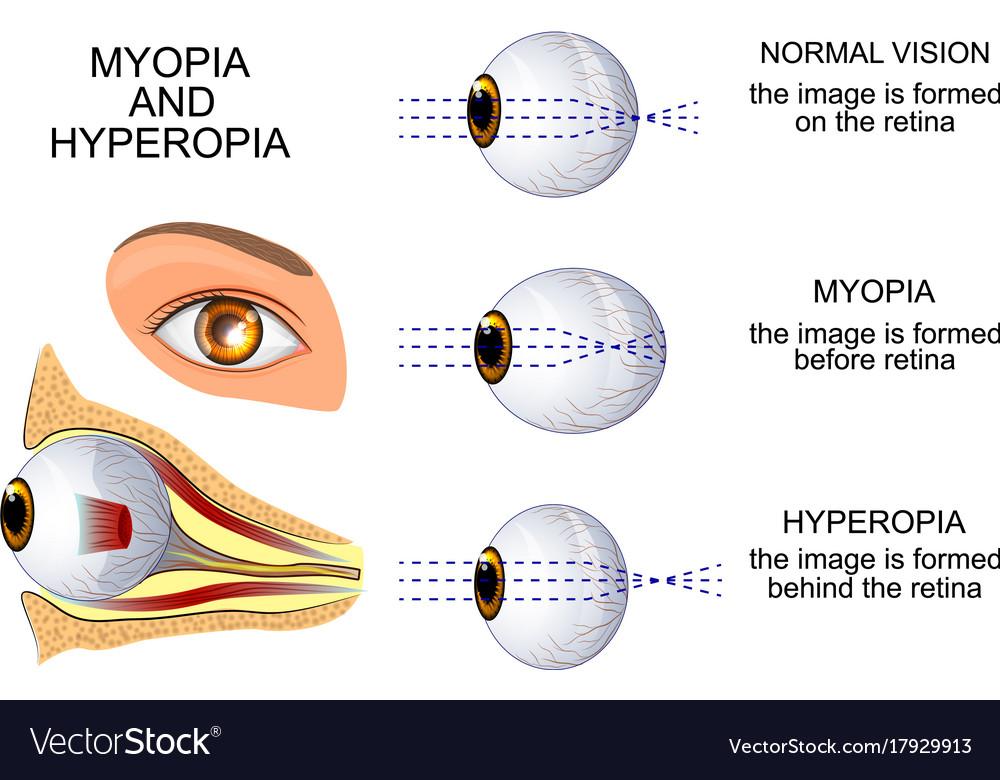 myopia 2 szakasz
