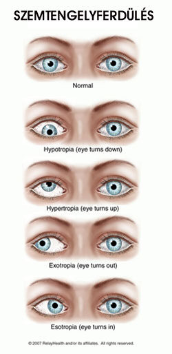 Mi a különbség a szemészeti vizsgálat és látásvizsgálat között?