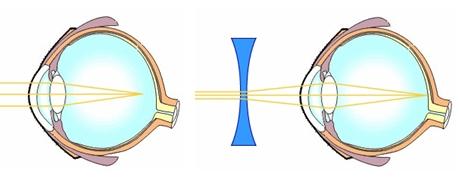 axiális rövidlátás és látássérülés a családban