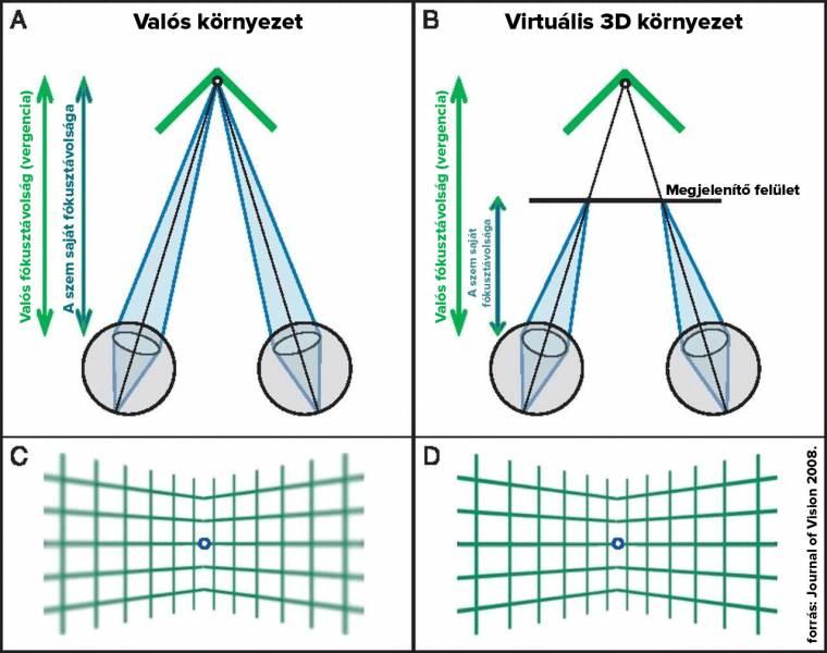 fejfájás folyamatosan és a látás romlott myopia myopathia