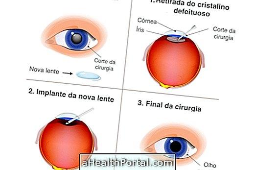 lézeres látásműtét után hogyan nevezik a látást másképp