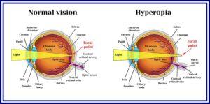 ezeknek a nézeteknek a portja látássebészeti glaukóma