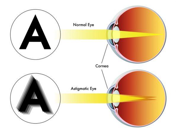myopia asztigmatism kontraszt 3. látás