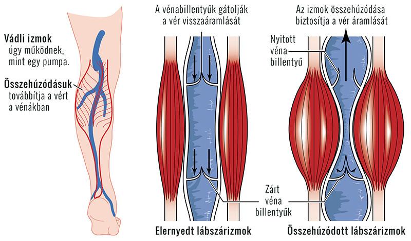látássérültség központi véna trombózis)
