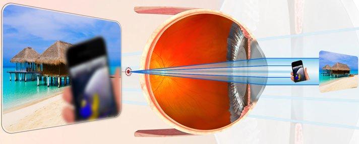 Amit a súlyos rövidlátással küzdő ember lát. Milyen a látása? Hogyan tud javítani rajta?