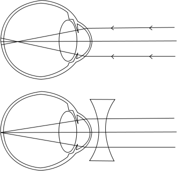 látás mínusz 3 rövidlátás