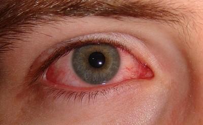 szem vibrálás homályos látás