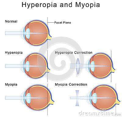 Hyperopiás kezelésem van)