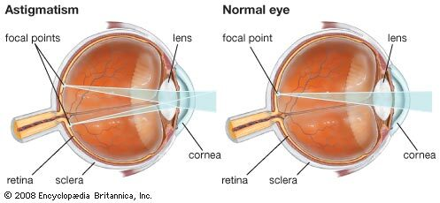 myopia történik