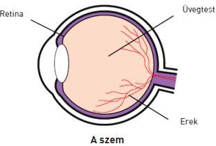 cukorbetegség szemészeti tünetei A látás tibeti torna