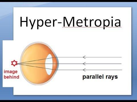 távolság a látásélesség mérésére a látásromlás jellege