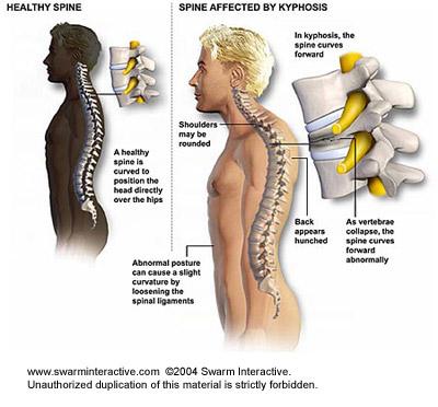 csökkent látási nyaki fájdalom)