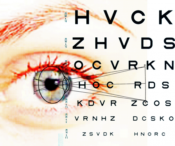 Látás-helyreállító rendszer. A szürkehályog műtét utáni gyógyulás: mit és mit ne