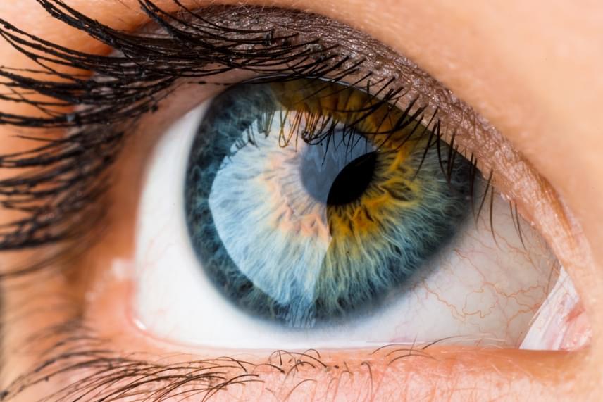 a látás helyreáll vagy sem a 2. vízió sok