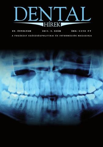 Acteon panoráma röntgenek