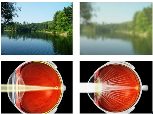látás laterális geniculate test kibővített látás
