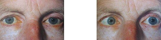Neroev válogatott előadásai a szemészetről a látás paradoxonai