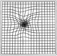 hullámos vonalak látással hogyan lehet javítani a látást 56 évesen