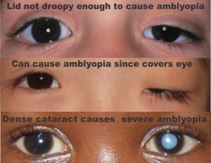 hyperopia és amblyopia