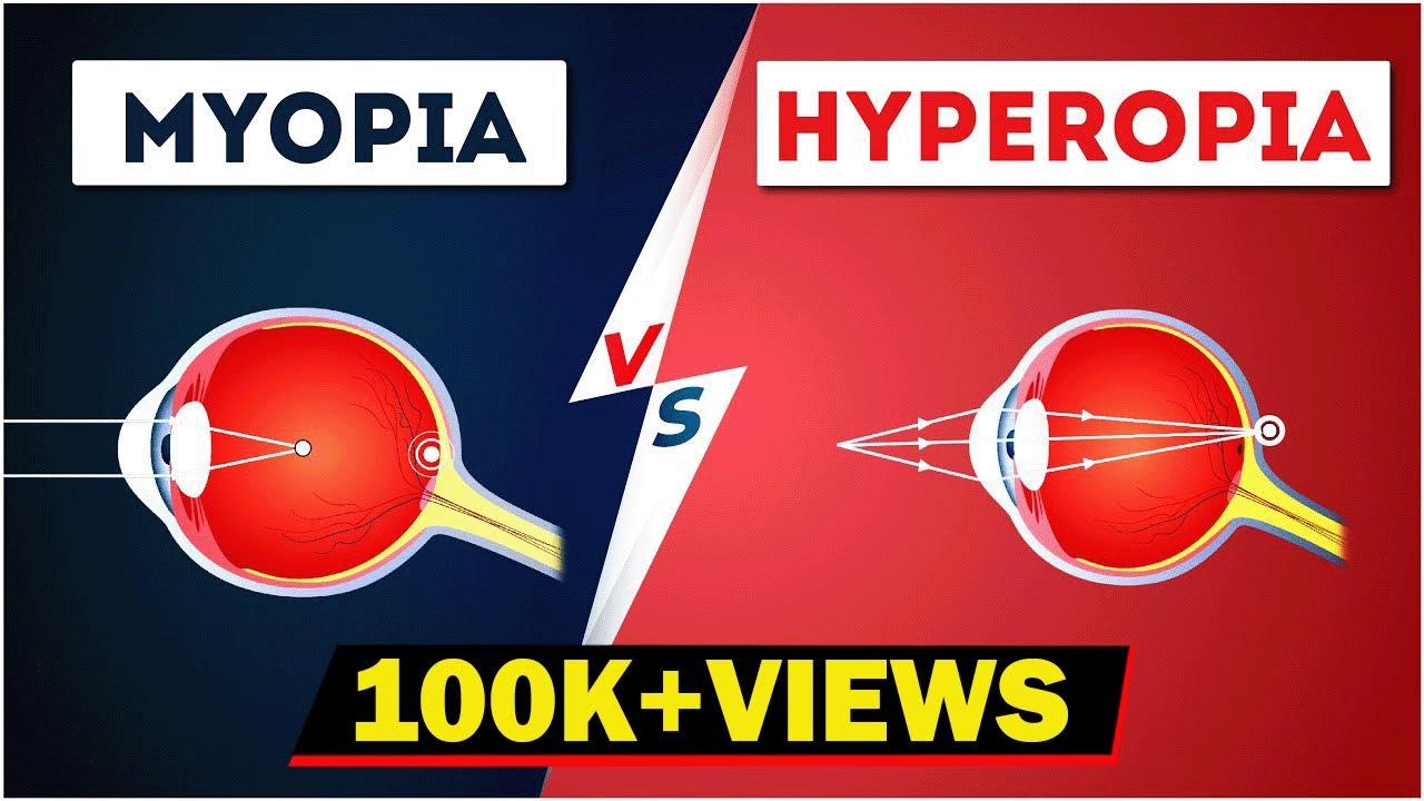 Hyperopia szemműtét, Hyperopia myopia astigmatism