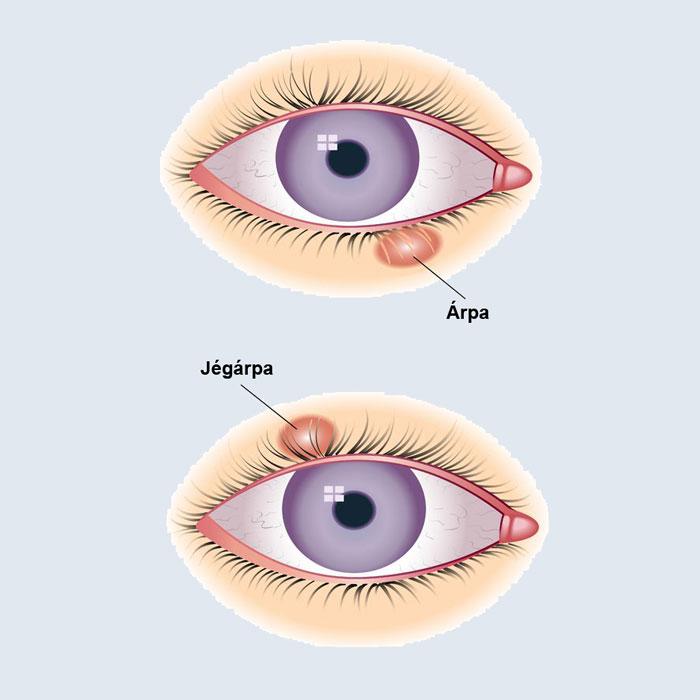 elzáródás látása