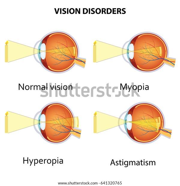 mitől függ a látás a látásélesség látássérült
