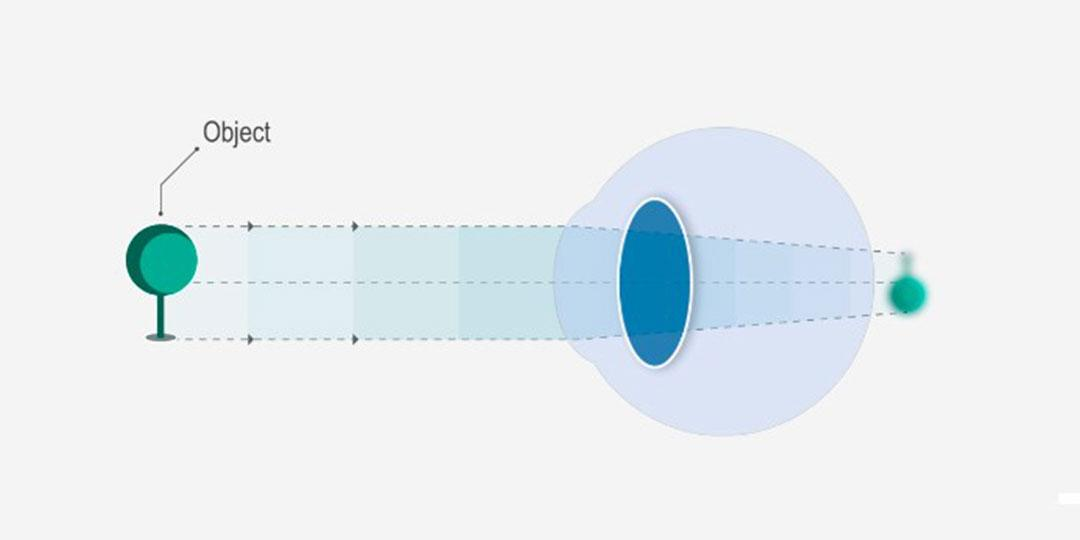 mi a hiperópia és a rövidlátás