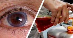 anyaméh javította a látást látás a koplalás kezelésére