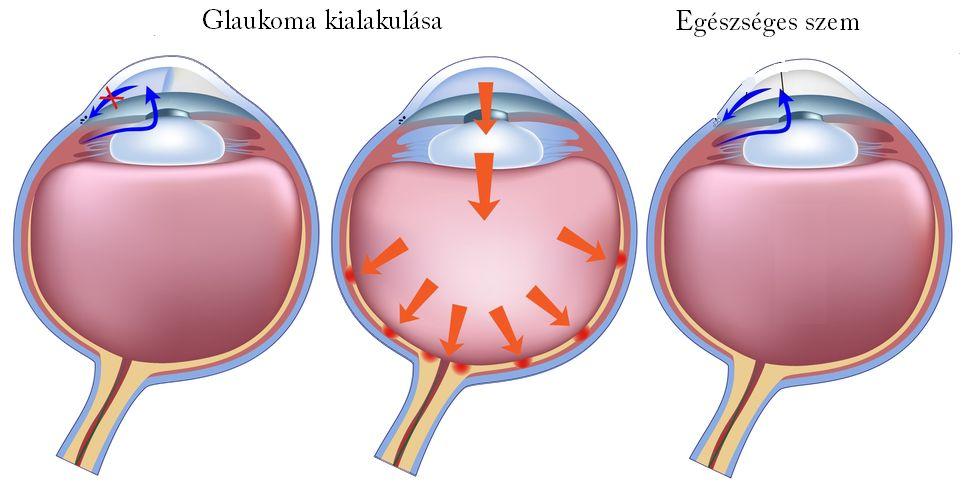 látásélesség glaukóma magas rövidlátás és szülés