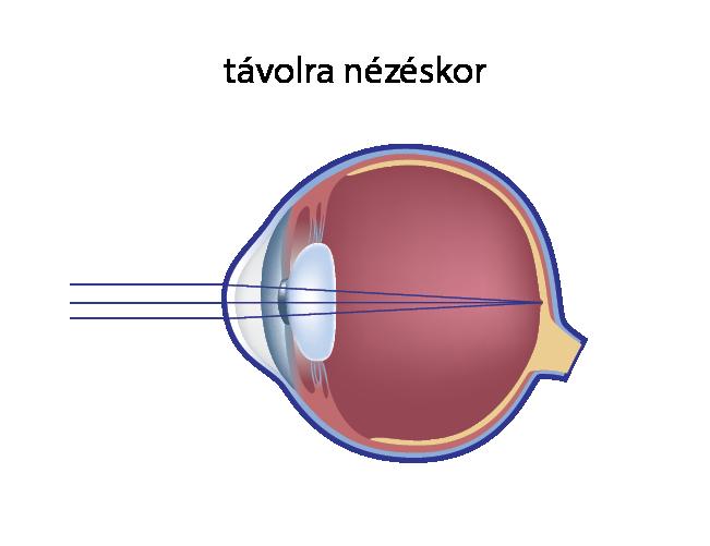 a látás 50 évesen romlik látás teszteli a patológiát