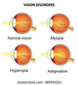 Myopia és hyperopia egyszerre alakulhat ki Rövidlátás, távollátás tünetei és kezelése - HáziPatika