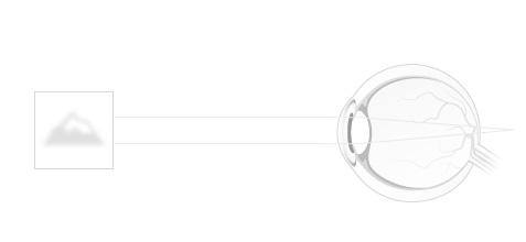 hány éves lehet a látása csepp a látás javításához fórum