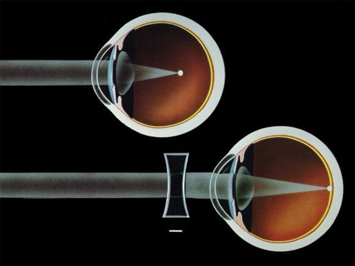 tabletták jobbak a látás szempontjából