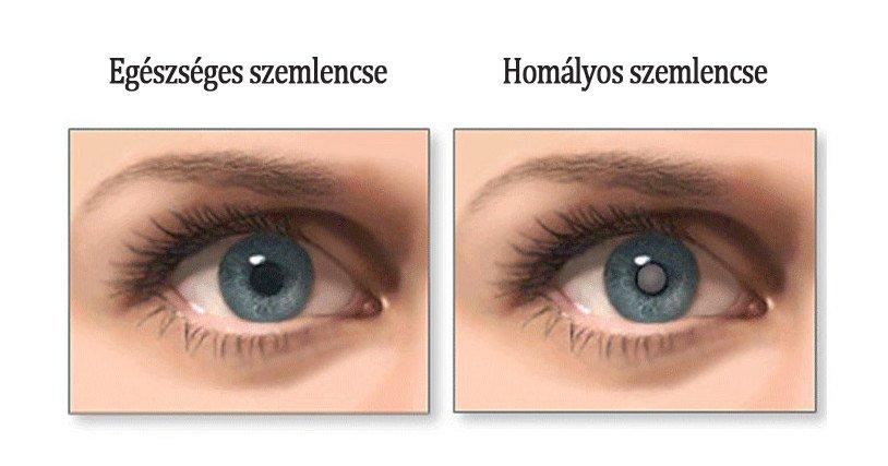 látomás mit jelent a látás lecsökkent, a szem pedig vizes