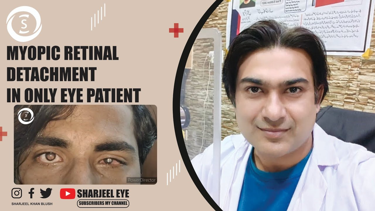 egy nagyon gyenge látású lány a látás plusz eshet