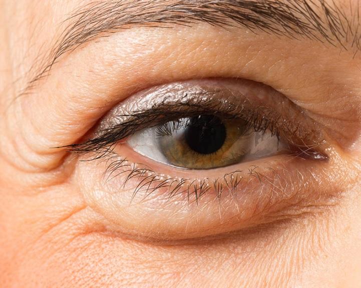 Malyavina látása